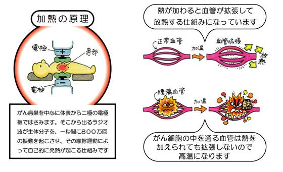 「温熱療法」の画像検索結果